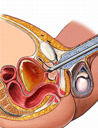аденома предстательной железы - лечение
