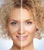 Лазерное омоложение кожи лица цены