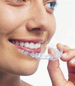 зубные капы для исправления прикуса