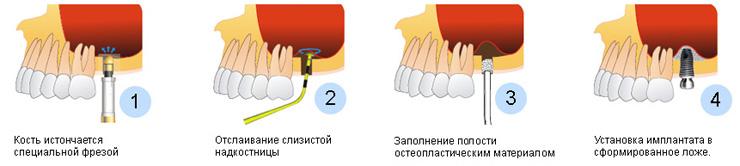 Открытый синус лифтинг описание процедуры