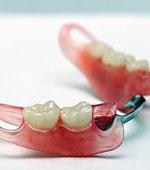 стоимость нейлонового зубного протеза