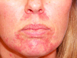 аллергического дерматита на лице фото