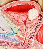 Лейкоплакия мочевого пузыря фото
